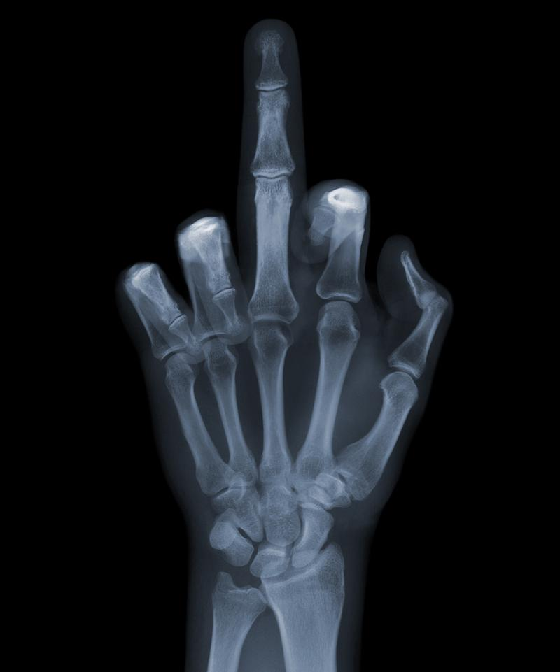 middle finger x ray The X Ray Vision of Nick Veasey