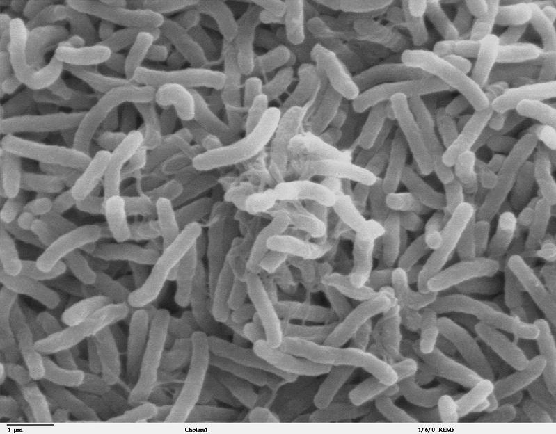 cholera culture of bacteria 10 Bizarre Names for a Group of Animals