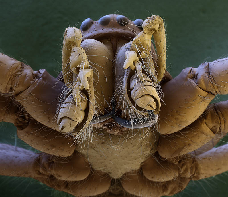 Spider Under Microscope Incredible Examples of...
