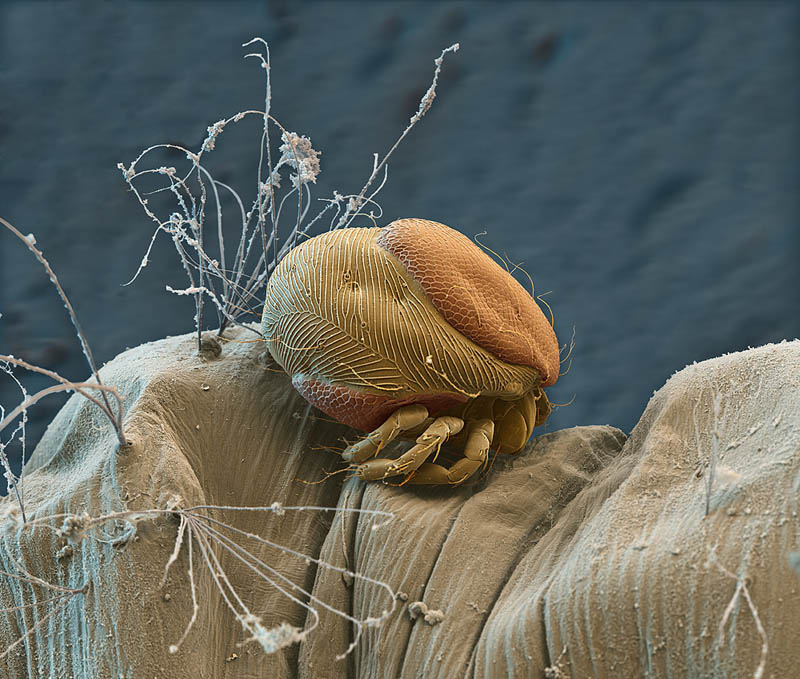 parasitic mite on mosquito larva nicoe ottawa Incredible Examples of Electron Microscope Photography