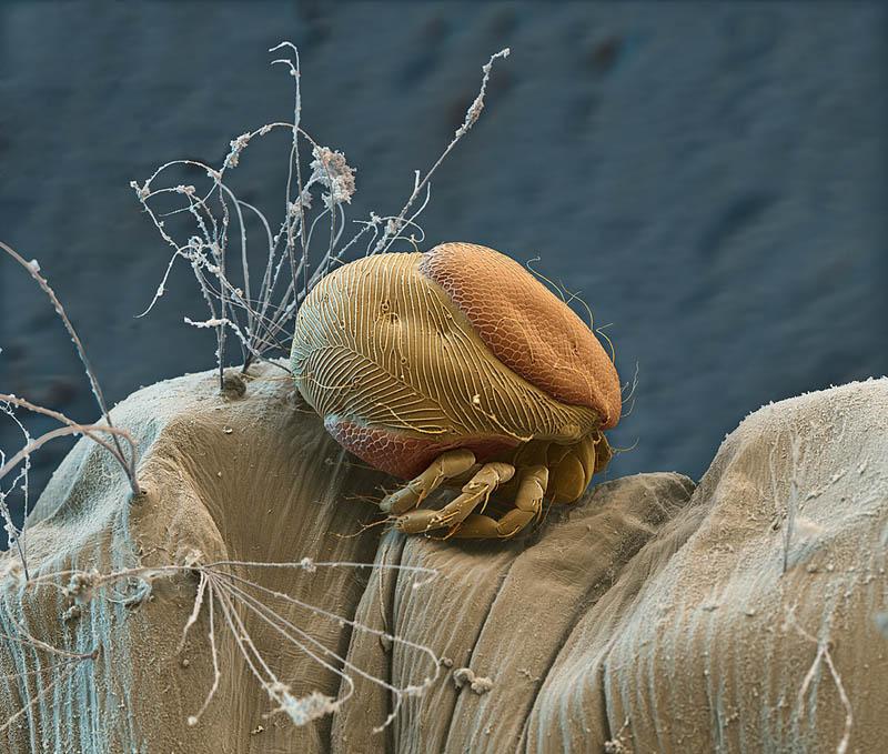 parasitic mite on mosquito larva nicoe ottawa Incredible Examples of Electron Microscope Photography