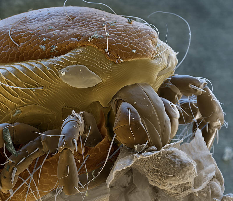 water mite mircoscope photography nicole ottawa Incredible Examples of Electron Microscope Photography