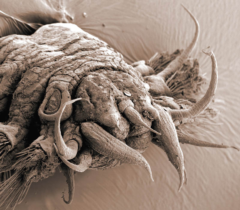 Incredible Examples of Electron Microscope Photography «TwistedSifter