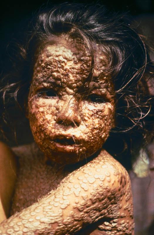 child with smallpox bangladesh This Day In History   October 26th