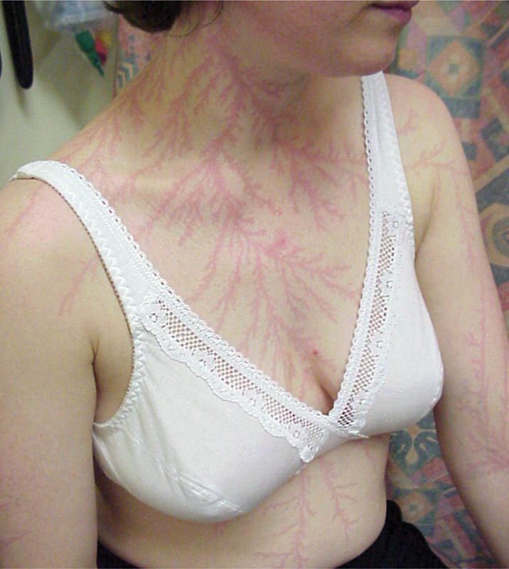 lightning strike scar lichtenberg figure 1 Lichtenberg Figures: The Fractal Patterns of Lightning Strike Scars