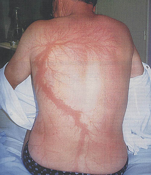 lightning strike scar lichtenberg figure 11 Lichtenberg Figures: The Fractal Patterns of Lightning Strike Scars