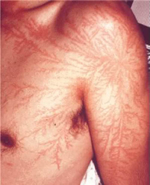 lightning strike scar lichtenberg figure 2 Lichtenberg Figures: The Fractal Patterns of Lightning Strike Scars