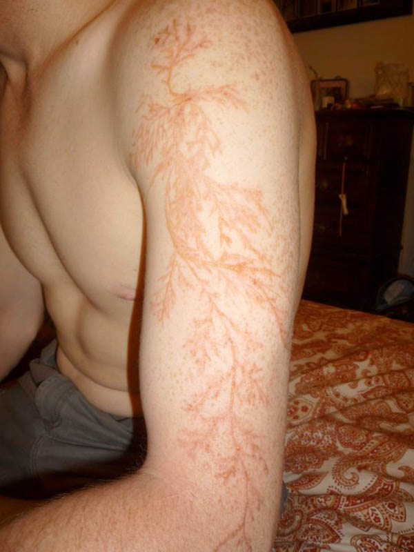 lightning strike scar lichtenberg figure 3 Lichtenberg Figures: The Fractal Patterns of Lightning Strike Scars