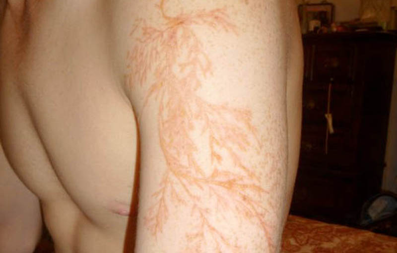 lightning strike scar lichtenberg figure 33 Fractal Patterns in Nature Found on Google Earth