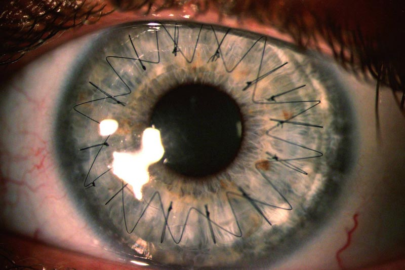 Picture of the Day: What Stitches in Your Eye Look Like