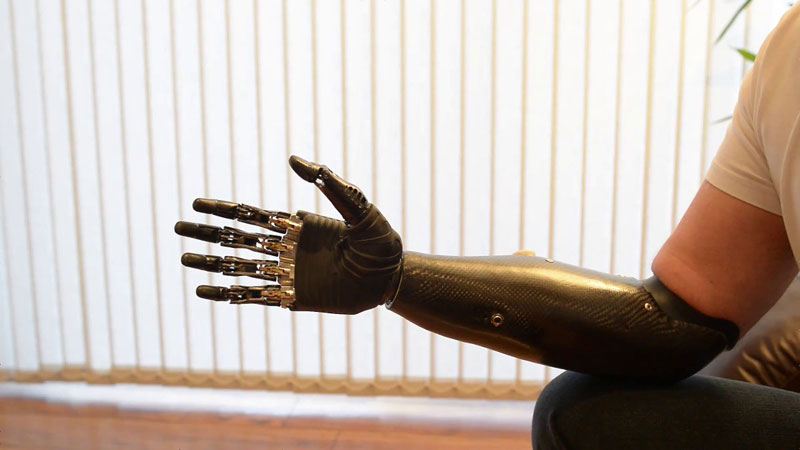 terminator arm bebionic3 rslsteeper 1 Terminator Arm is Worlds Most Advanced Prosthetic