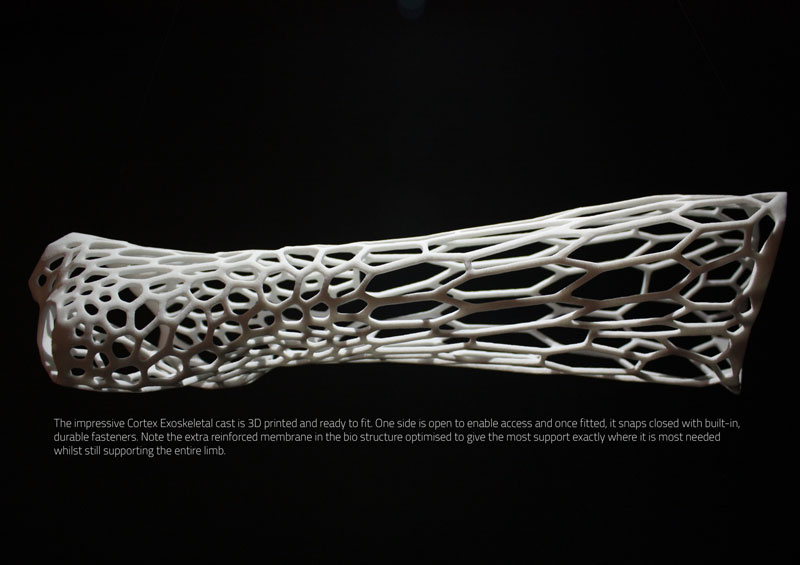 Could This Be the 3D-Printed Cast of the Future?