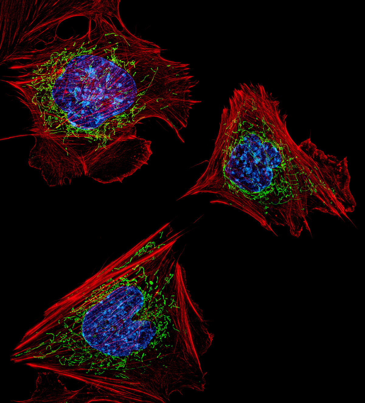 2013--5-Burnette-mouse-fibroblasts-large-file