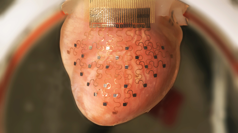 This Revolutionary Membrane Can Keep a Heart Beating Outside of the Body