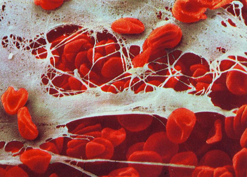 05---Skin-tissue