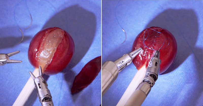 Doctor Uses Robot to Stitch a Grape Back Together